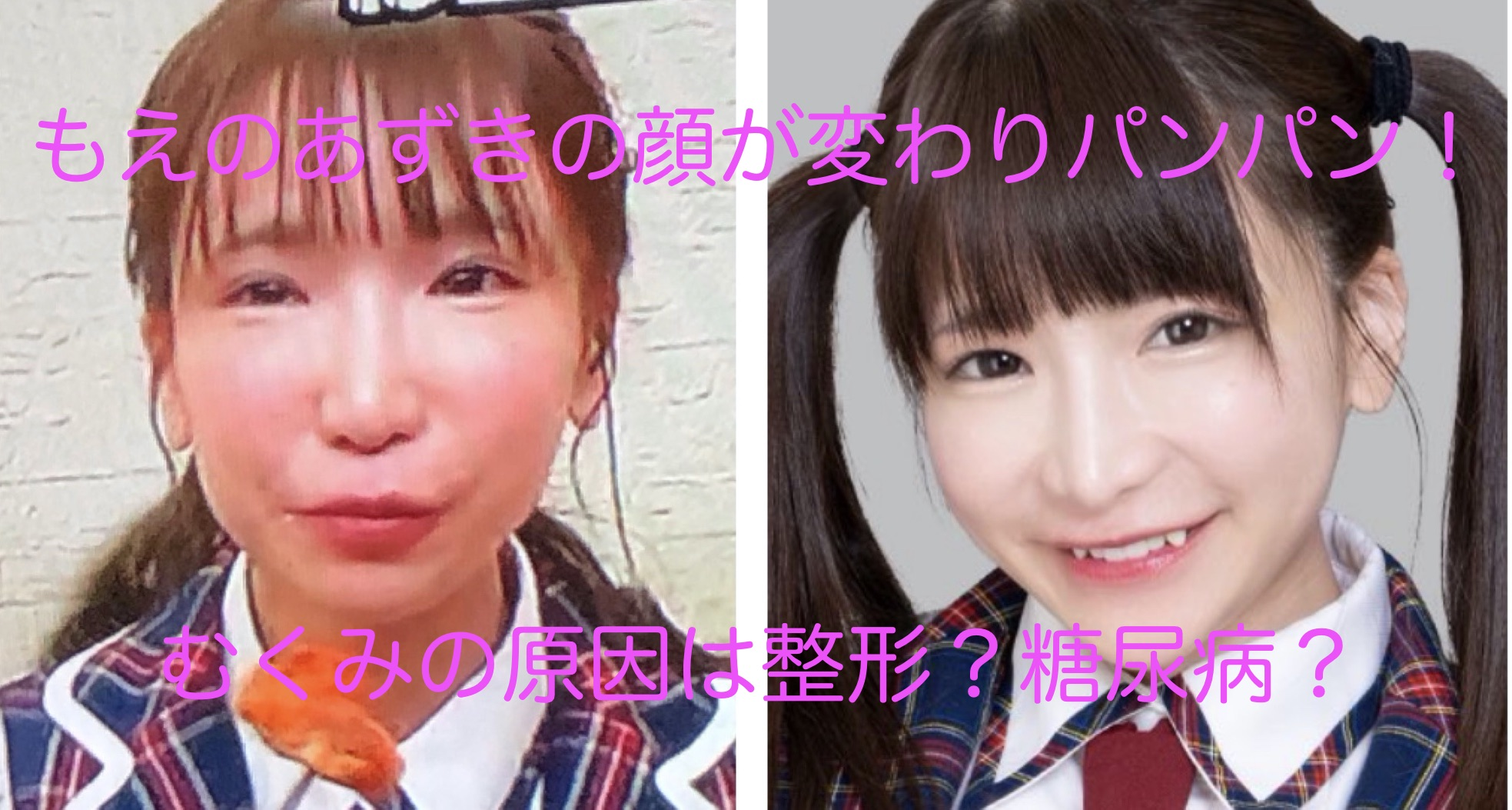 もえ の あずき 整形 【画像】もえのあずきは整形で顔が変わった?目の二重と鼻も?昔と比...