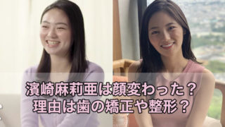 濱崎麻莉亜が顔変わった理由は歯の矯正や整形?