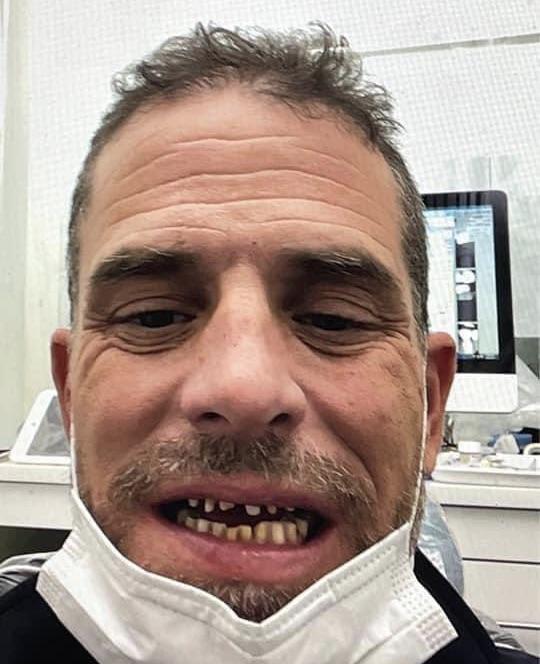 ハンターバイデン の歯はボロボロ?