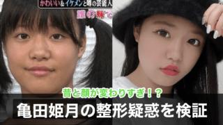 画像比較|亀田姫月の現在がかわいい!昔と目・鼻が違うのは整形?