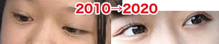 亀田姫月の目は整形?