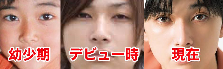 吉沢亮は目頭切開の整形をしたのか比較!