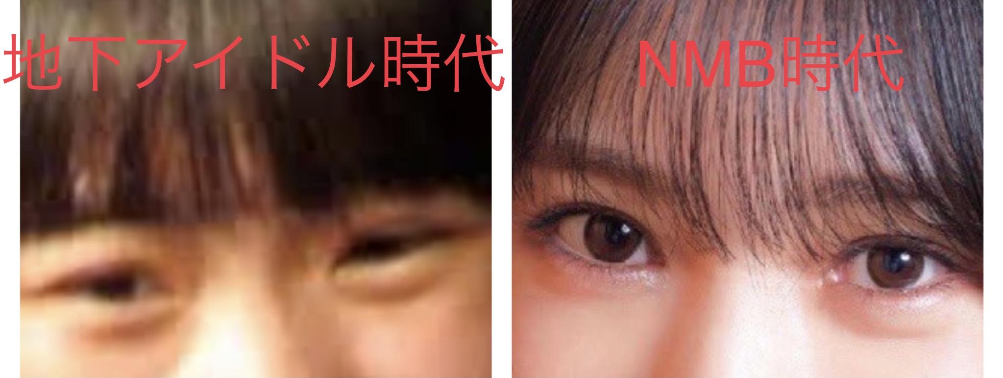横野すみれの目は整形?