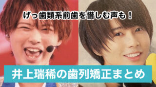 【画像】井上瑞稀の歯並び矯正で口元や前歯が綺麗に?時系列で比較してみた!