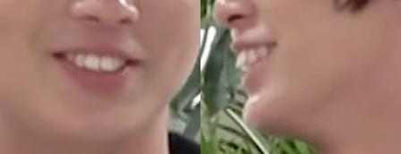 井上瑞稀の歯並びを矯正