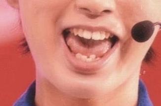矯正する前の井上瑞稀の歯並び